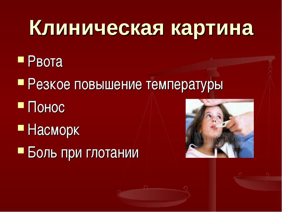Клиническая картина Рвота Резкое повышение температуры Понос Насморк Боль при...