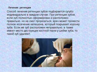Лечение ретенции Способ лечения ретенции зубов подбирается сугубо индивидуаль