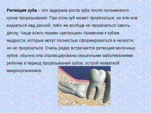 Ретенция зуба– это задержка роста зуба после положенного срока прорезывания.