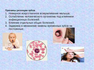 Причины ретенции зубов Неверное искусственное вскармливание малыша; Ослаблени