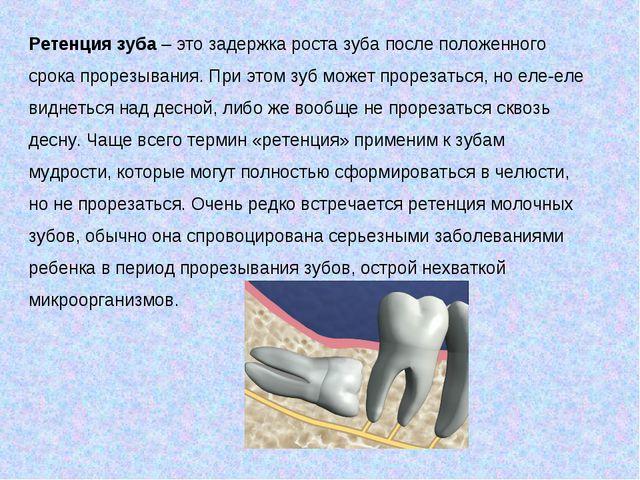 Ретенция зуба– это задержка роста зуба после положенного срока прорезывания....