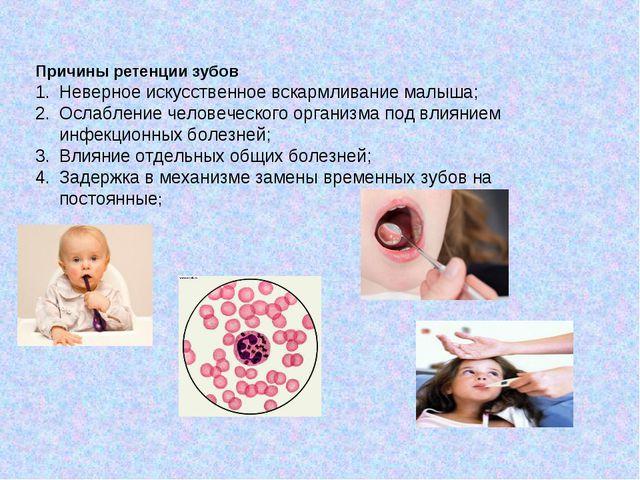 Причины ретенции зубов Неверное искусственное вскармливание малыша; Ослаблени...