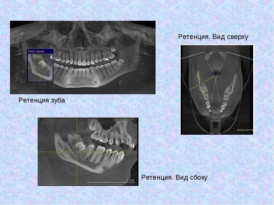 Ретенция зуба Ретенция. Вид сбоку Ретенция. Вид сверху