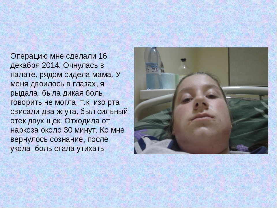 Операцию мне сделали 16 декабря 2014. Очнулась в палате, рядом сидела мама. У...