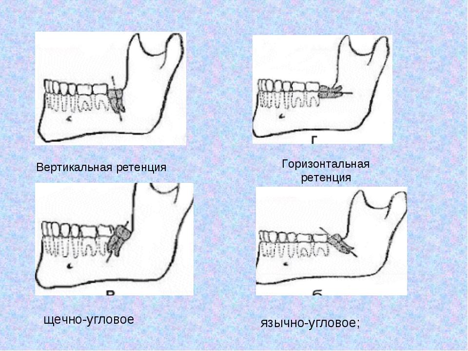 Вертикальная ретенция Горизонтальная ретенция щечно-угловое язычно-угловое;