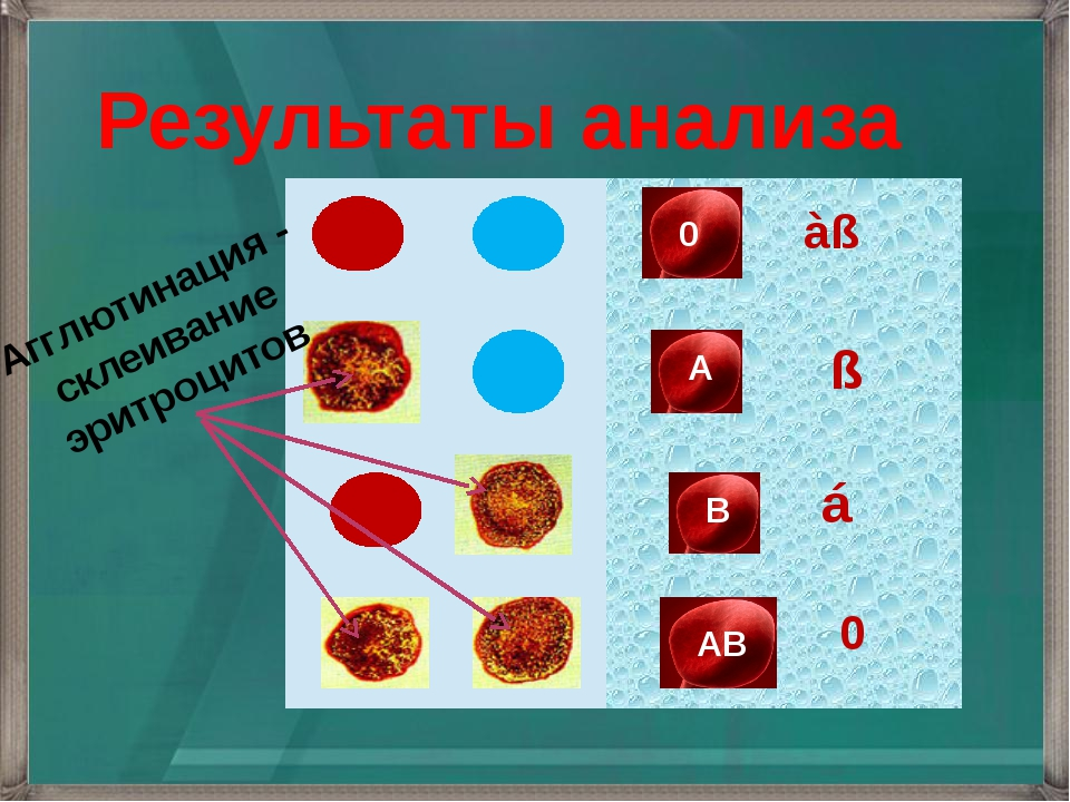 á àß ß 0 Результаты анализа Агглютинация - склеивание эритроцитов В 0 А АВ