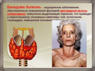 Базедова болезнь - эндокринное заболевание, обусловленное повышенной функцией