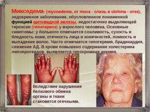 Mикседема- (myxoedema, от muva - слизь и oiohma - отек), эндокринное заболева