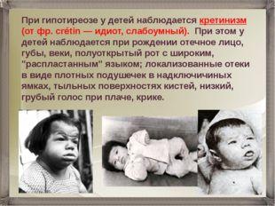 При гипотиреозе у детей наблюдается кретинизм (от фр. crétin — идиот, слабоум