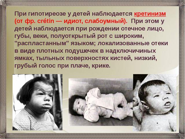 При гипотиреозе у детей наблюдается кретинизм (от фр. crétin — идиот, слабоум...