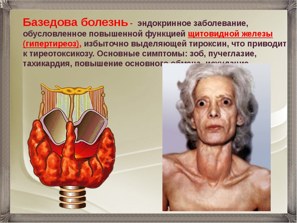Базедова болезнь - эндокринное заболевание, обусловленное повышенной функцией...