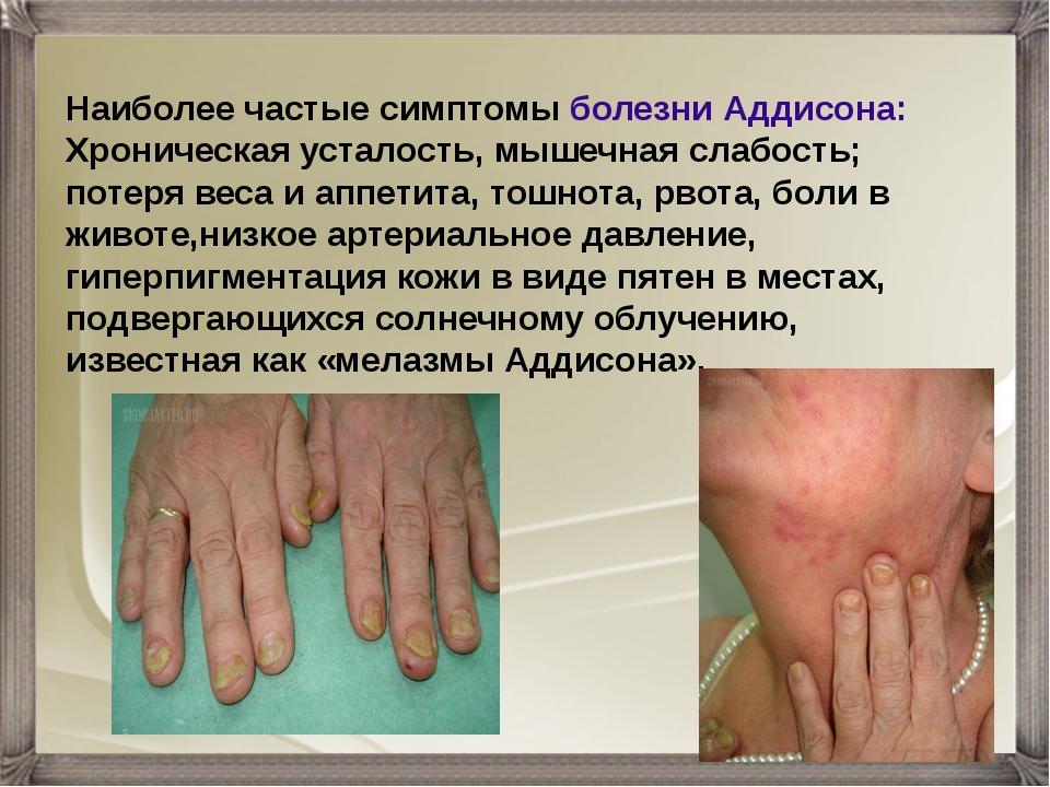 Наиболее частые симптомы болезни Аддисона: Хроническая усталость, мышечная сл...