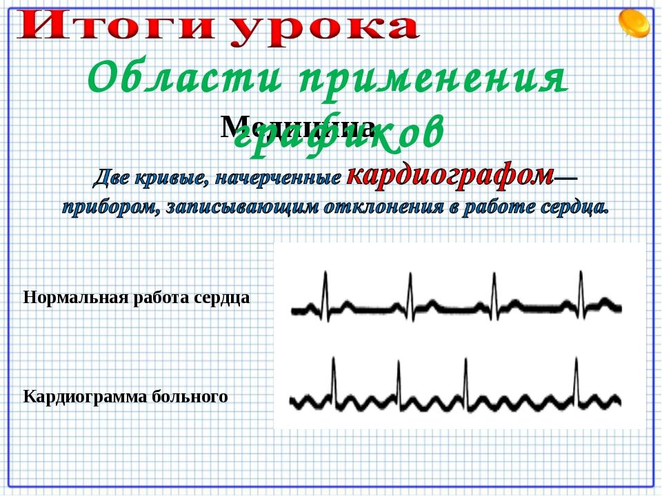 Медицина Нормальная работа сердца Кардиограмма больного Области применения гр...
