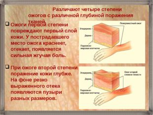 Pазличают четыре степени ожогов с различной глубиной поражения тканей. Ожоги