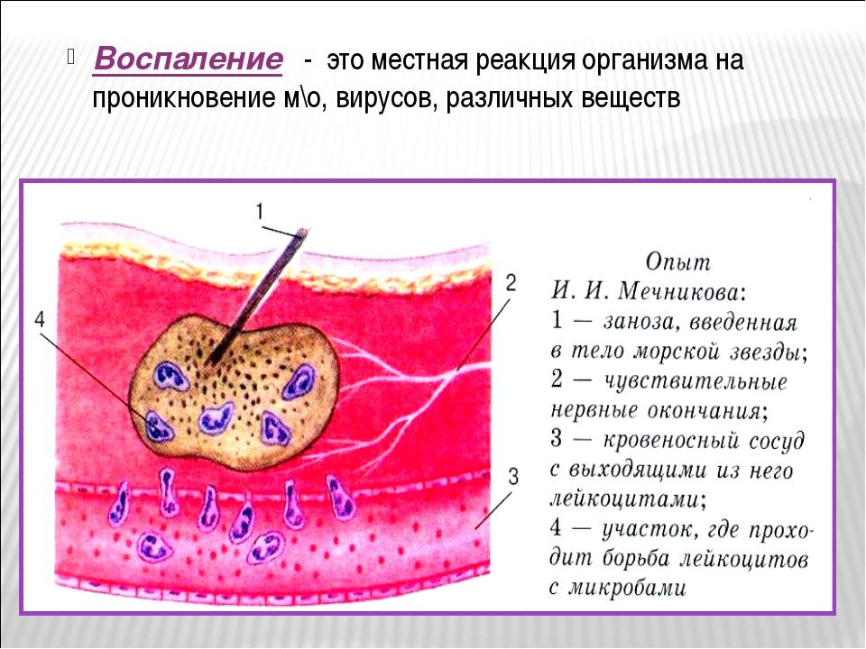 Воспаление - это местная реакция организма на проникновение м\о, вирусов, раз...
