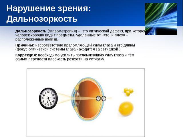 Нарушение зрения: Дальнозоркость Дальнозоркость (гиперметропия) – это оптичес...