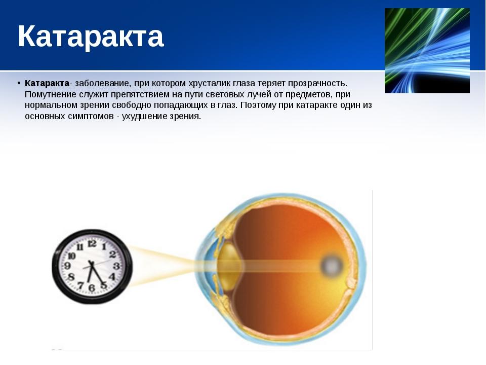 Катаракта Катаракта- заболевание, при котором хрусталик глаза теряет прозрачн...