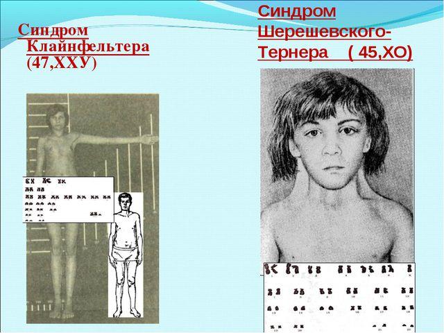 Синдром Клайнфельтера (47,ХХУ) Синдром Шерешевского- Тернера ( 45,ХО)