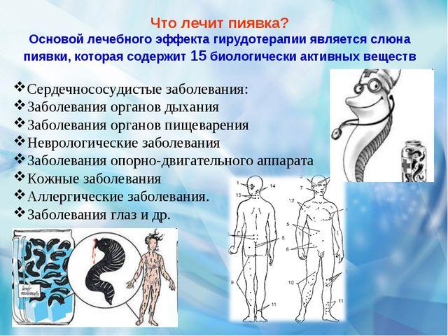 Что лечит пиявка? Основой лечебного эффекта гирудотерапии является слюна пияв...