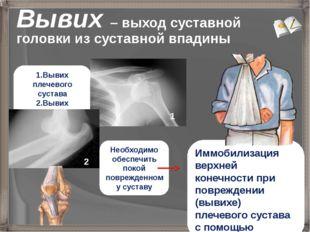 Вывих – выход суставной головки из суставной впадины Иммобилизация верхней ко