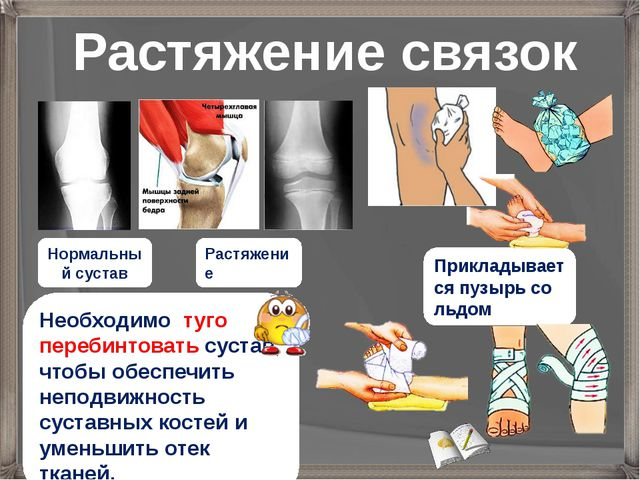 Необходимо туго перебинтовать сустав, чтобы обеспечить неподвижность суставны...