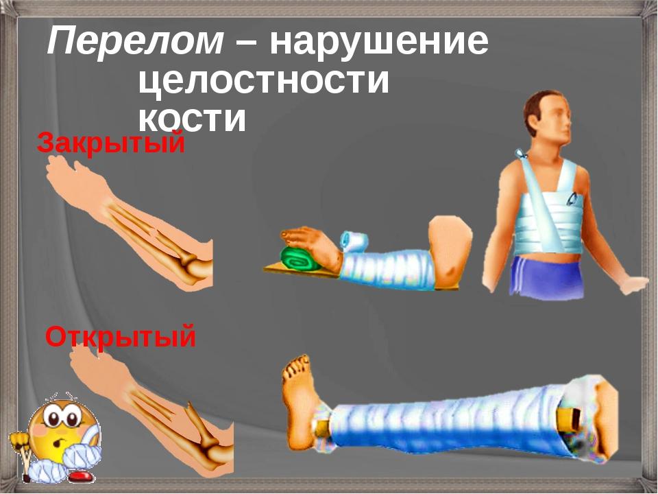Перелом – нарушение целостности кости Закрытый Открытый