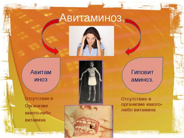 Авитаминоз. Отсутствие в Организме какого-либо витамина Авитаминоз Гиповитами...