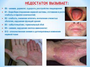 B6 - анемия, дерматит, судороги, расстройство пищеварения B1 - Бери-бери (пор