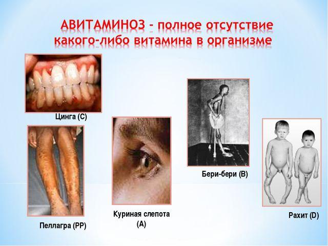 Цинга (С) Рахит (D) Бери-бери (В) Куриная слепота (А) Пеллагра (РР)