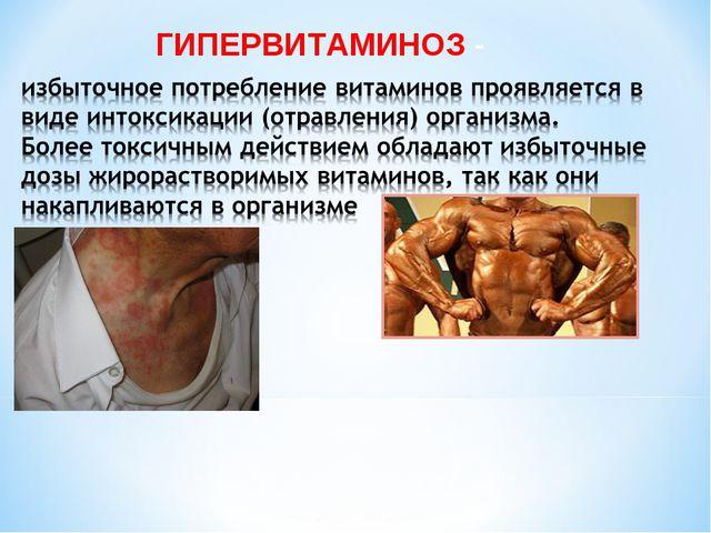 ГИПЕРВИТАМИНОЗ -