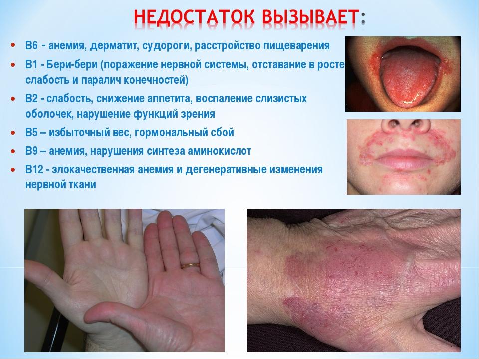 B6 - анемия, дерматит, судороги, расстройство пищеварения B1 - Бери-бери (пор...