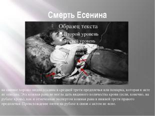 Смерть Есенина на снимке хорошо видна ссадина в средней трети предплечья или