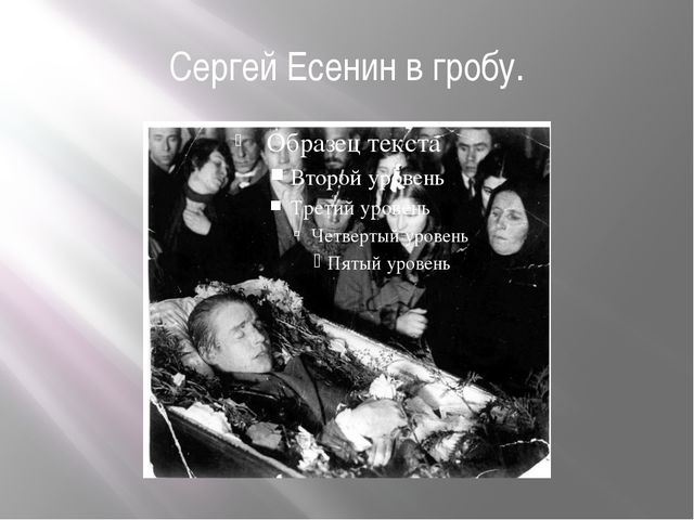 Сергей Есенин в гробу.