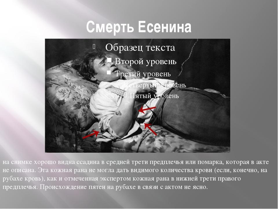 Смерть Есенина на снимке хорошо видна ссадина в средней трети предплечья или...
