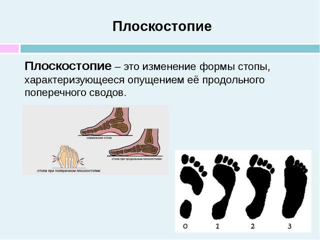 Плоскостопие Плоскостопие – это изменение формы стопы, характеризующееся опущ...