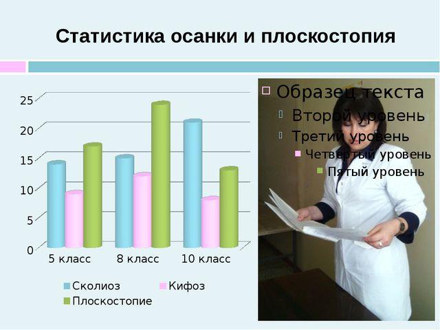Статистика осанки и плоскостопия