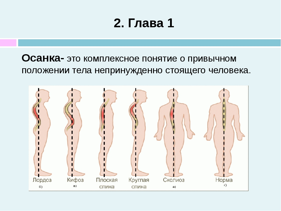 2. Глава 1 Осанка- это комплексное понятие о привычном положении тела неприну...