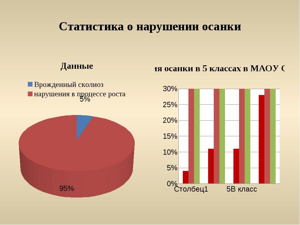 Статистика о нарушении осанки