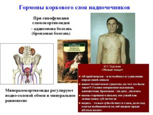 При гипофункции глюкокортикоидов - аддисонова болезнь (бронзовая болезнь) * Г