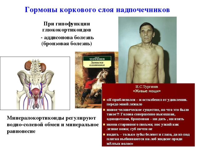 При гипофункции глюкокортикоидов - аддисонова болезнь (бронзовая болезнь) * Г...