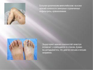 Больная хроническим миелолейкозом: на коже нижней конечности синюшные огранич