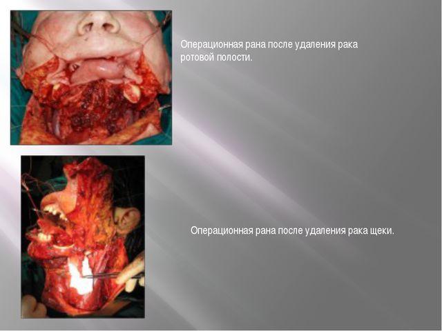 Операционная рана после удаления рака ротовой полости. Операционная рана посл...