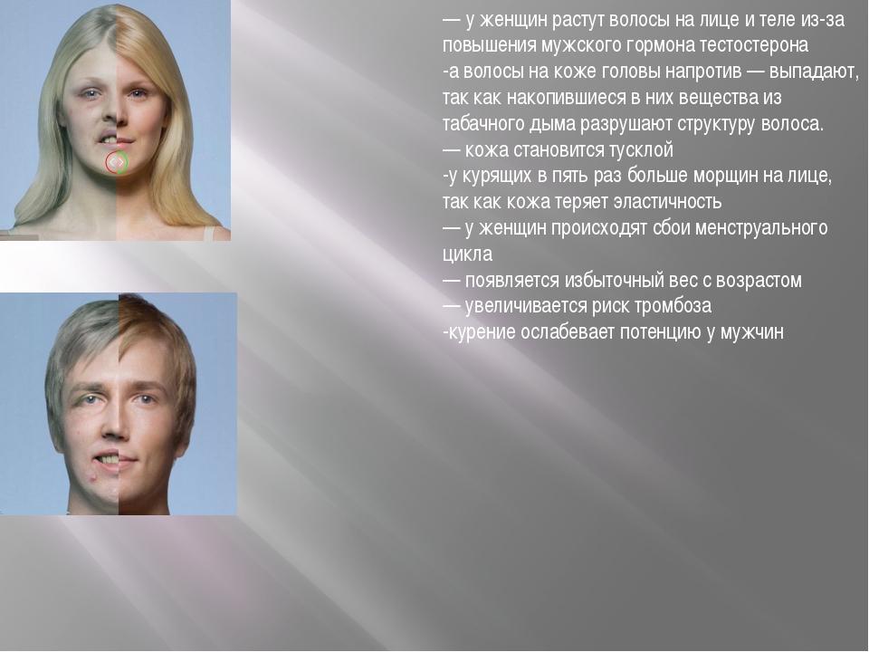 — у женщин растут волосы на лице и теле из-за повышения мужского гормона тест...