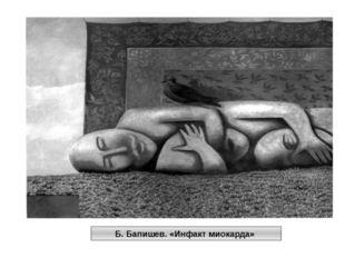 Б. Бапишев. «Инфакт миокарда»