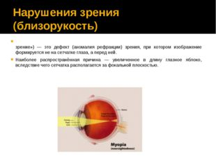 Нарушения зрения (близорукость) Близору́кость (также — миопи́я) (от др.-греч.