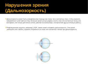 Нарушения зрения (Дальнозоркость) Дальнозоркость может быть исправлена при по