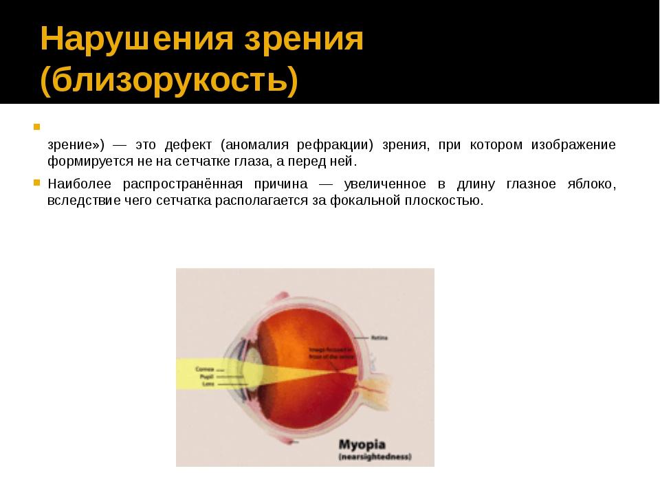Нарушения зрения (близорукость) Близору́кость (также — миопи́я) (от др.-греч....