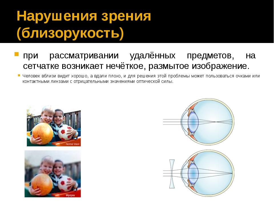 Нарушения зрения (близорукость) при рассматривании удалённых предметов, на се...