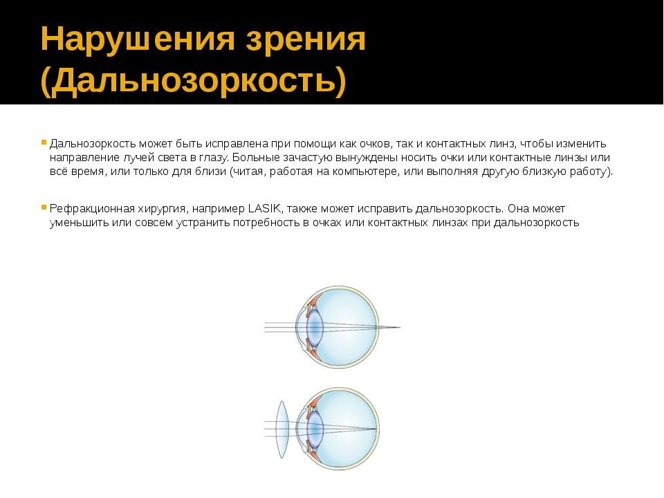 Нарушения зрения (Дальнозоркость) Дальнозоркость может быть исправлена при по...
