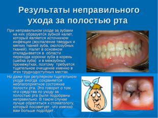 Результаты неправильного ухода за полостью рта При неправильном уходе за зуба